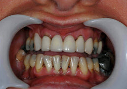 image of dental crown case study before treatment