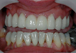 image of dental crown case study after treatment