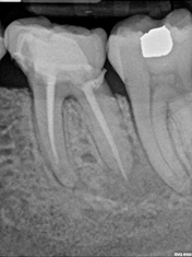 image of dental implant case study before treatment