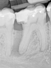 image of orthodontic case study before treatment