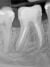 image of orthodontic case study after treatment