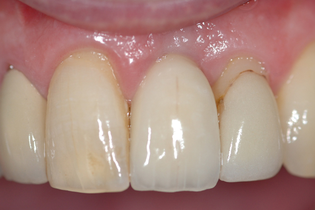 image of dental implant case study after treatment