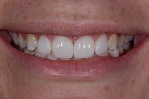 image of Mini Smile Makeovers Case Study