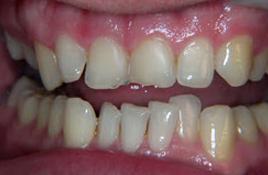 image of veneers case study before treatment