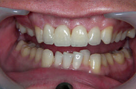 image of veneers case study after treatment