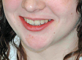 image of teeth whitening case study before treatment