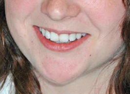 image of teeth whitening case study after treatment